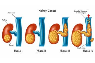 urological_cancers_kidney_cancer